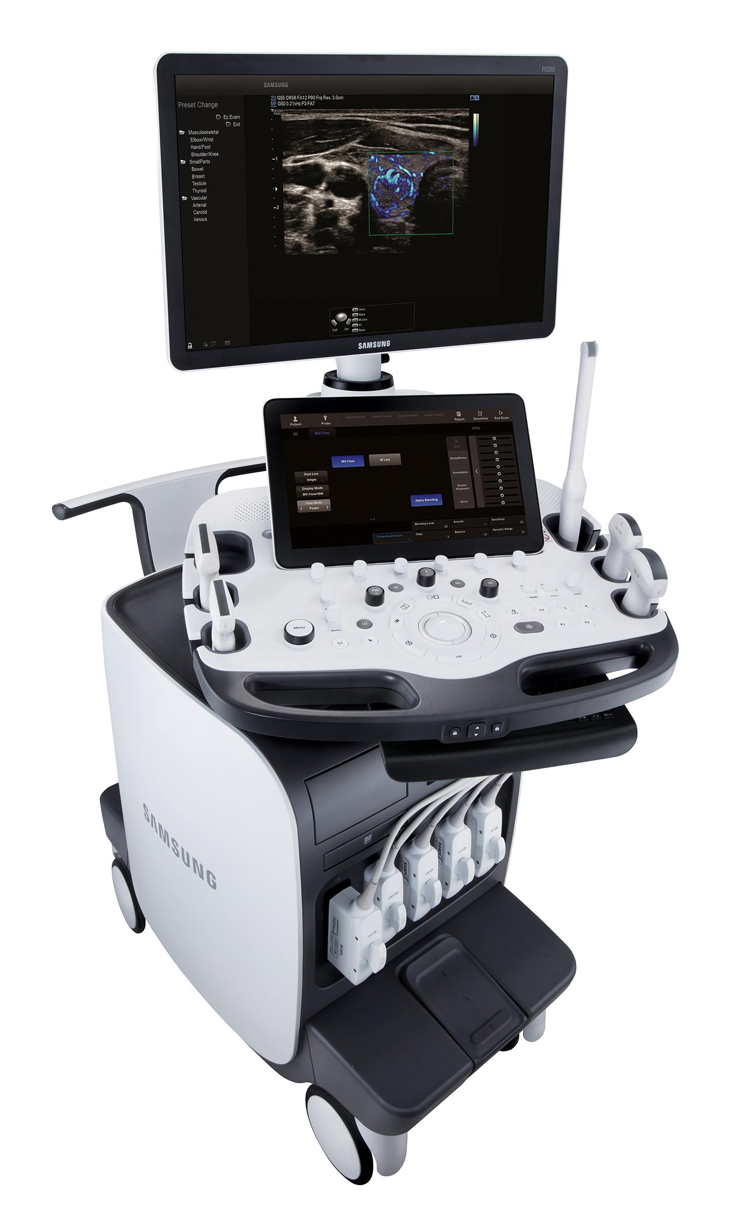 Máy siêu âm tổng quát có chức năng chẩn đoán độ cứng vùng tổn thương ở gan - RS85