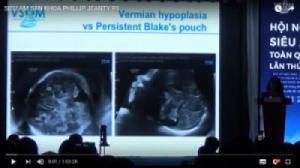 Bài giảng Siêu âm Sản khoa của Giáo sư Phillip Jeanty - Hội nghị siêu âm toàn quốc Việt Nam (VSUM 2018)